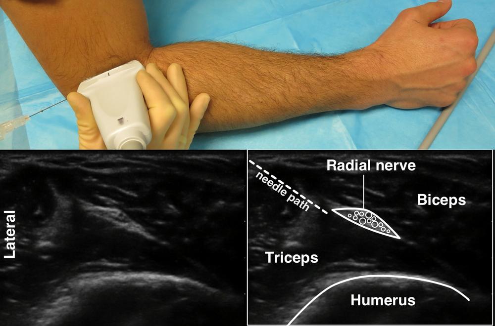 forearm blocks highland em ultrasound fueled pain management