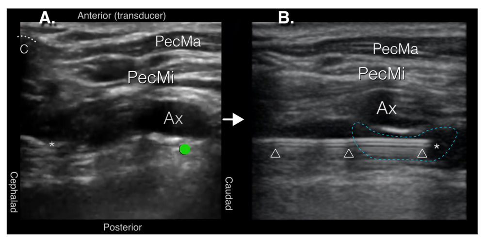 "Figure 3. Ultrasound guidance of block needle A. After traversing the approximately 3cm ""blind zone"" further needle advance is stopped and slight transducer and needle adjustments are made until the needle tip is visible emerging from the clavicle's acoustic shadow.   B. The block needle is then advance with in-plan ultrasound guidance to the target location just posterior to the axillary artery. Fine adjustments in needle position are made until small test injections of normal saline or local anesthetic (LA) are seen spreading within the axillary sheath just posterior to the axillary artery. The axillary artery often appears to float away (anteriorly towards the transducer) from the needle tip with injection, and anechoic anesthetic fluid collects just posterior to the artery (forming the ""double bubble sign"", with the first ""bubble"" being the axillary artery and the second ""bubble"" being the injected fluid) as additional confirmation of injectate deposition within the axillary sheath. Once satisfied with the needle position, LA is gradually injected in small aliquots following negative aspiration, until a total of 20-35mLs is deposited within the sheath. White dotted line = clavicle, C= acoustic shadow of the clavicle, PecMa = pectoralis major, PecMi = pectoralis minor, Ax = axillary artery, asterisk = needle tip, triangles = needle shaft, green dot = injection target location, blue dashed line = LA"