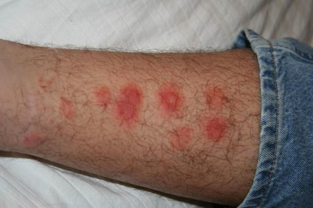 Help I M Getting Bit A Guide To Identifying Bug Bites
