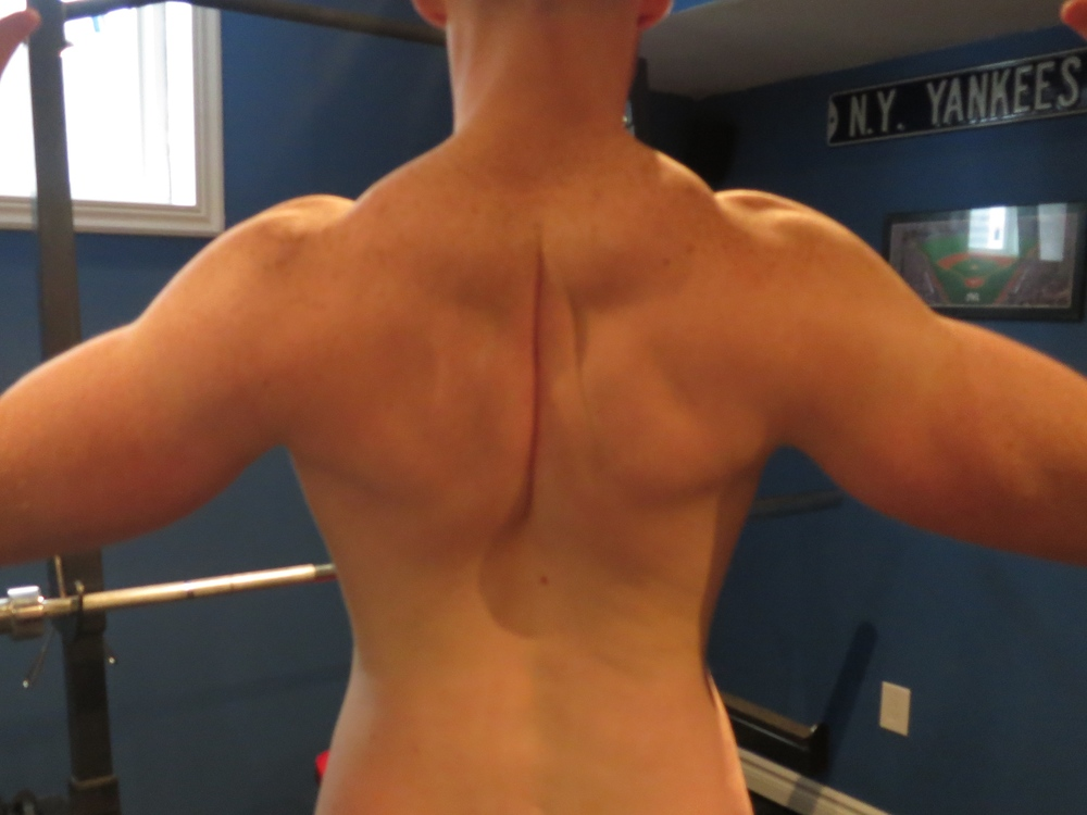 Shoulder blades should be retracted and down. Rather that just squeezing your shoulder blades together, aim to bring the bottom tips of your scapulae together.