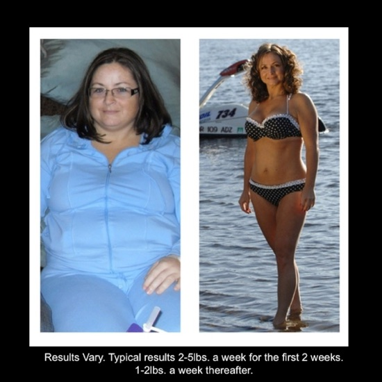 body contouring after weight loss new york