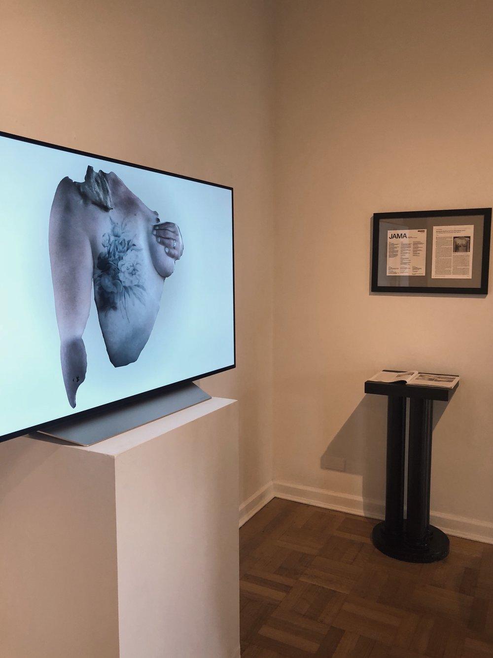 Mastectomy Tattoos and Post-Surgery Healing