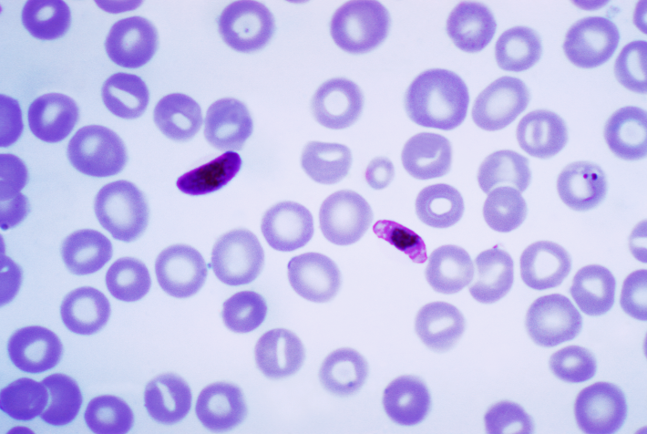 Plasmodium falciparum (Copyright under Wikipedia Commons license).