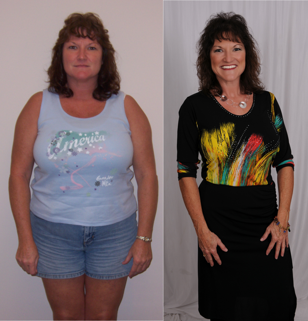 Cindi before and after