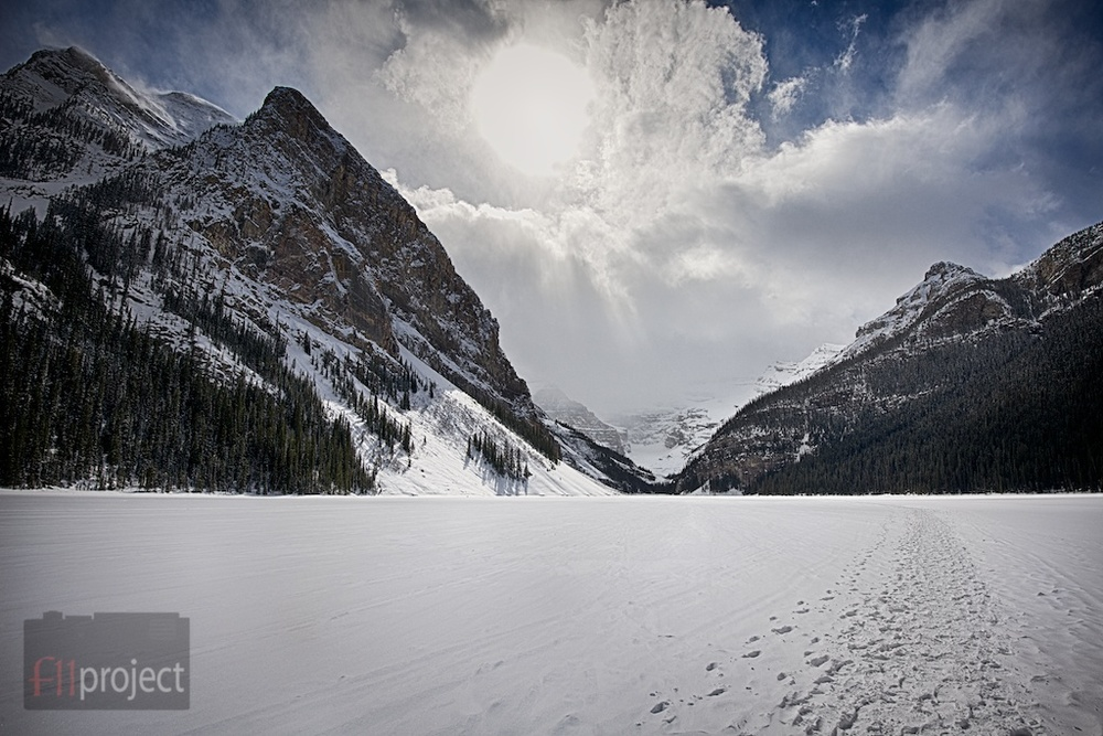 Frozen Lake Louise, Banff, Alberta, Canada