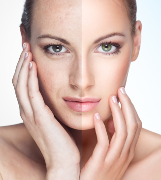 Microdermabrasion at Suttons Bay Skin Care Center helps even out skin texture and appearance.