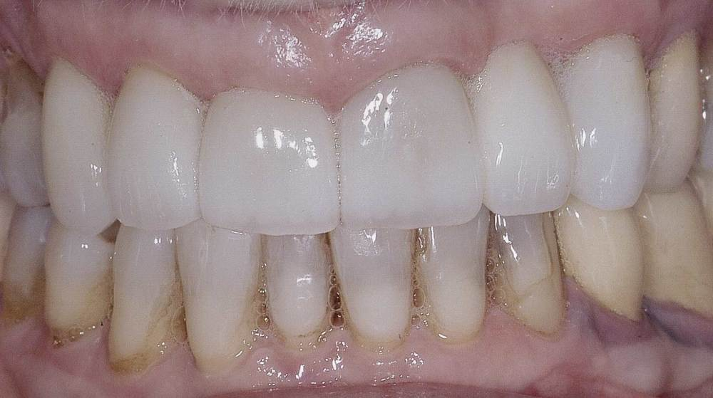 After restorative dentistry