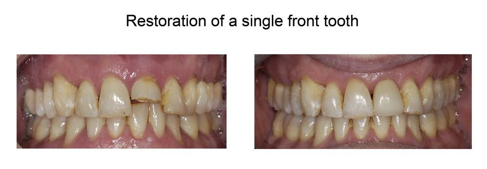 Restoration of a single front tooth