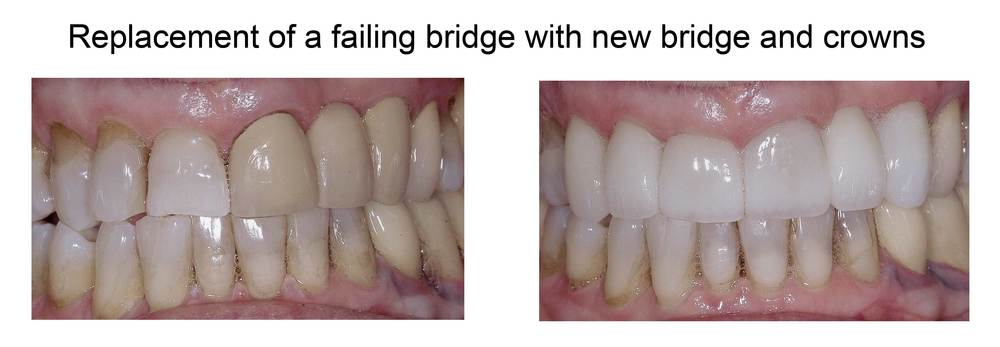 Replacement of a failing bridge with new bridge and crowns.