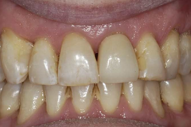 After restoration of upper front tooth.