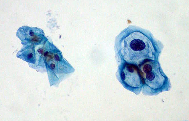 HPV/LSIL On Pap Smear - Normal squamous cells on left; HPV-infected cells with mild dysplasia (LSIL) on right.