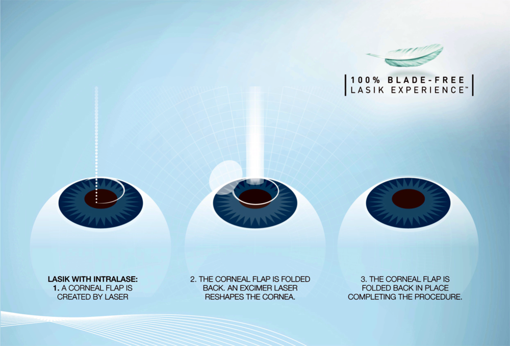 How LASIK Works