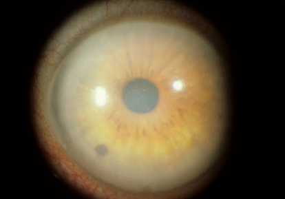 In advanced Fuchs' dystrophy the cornea becomes hazy and dull due to swelling