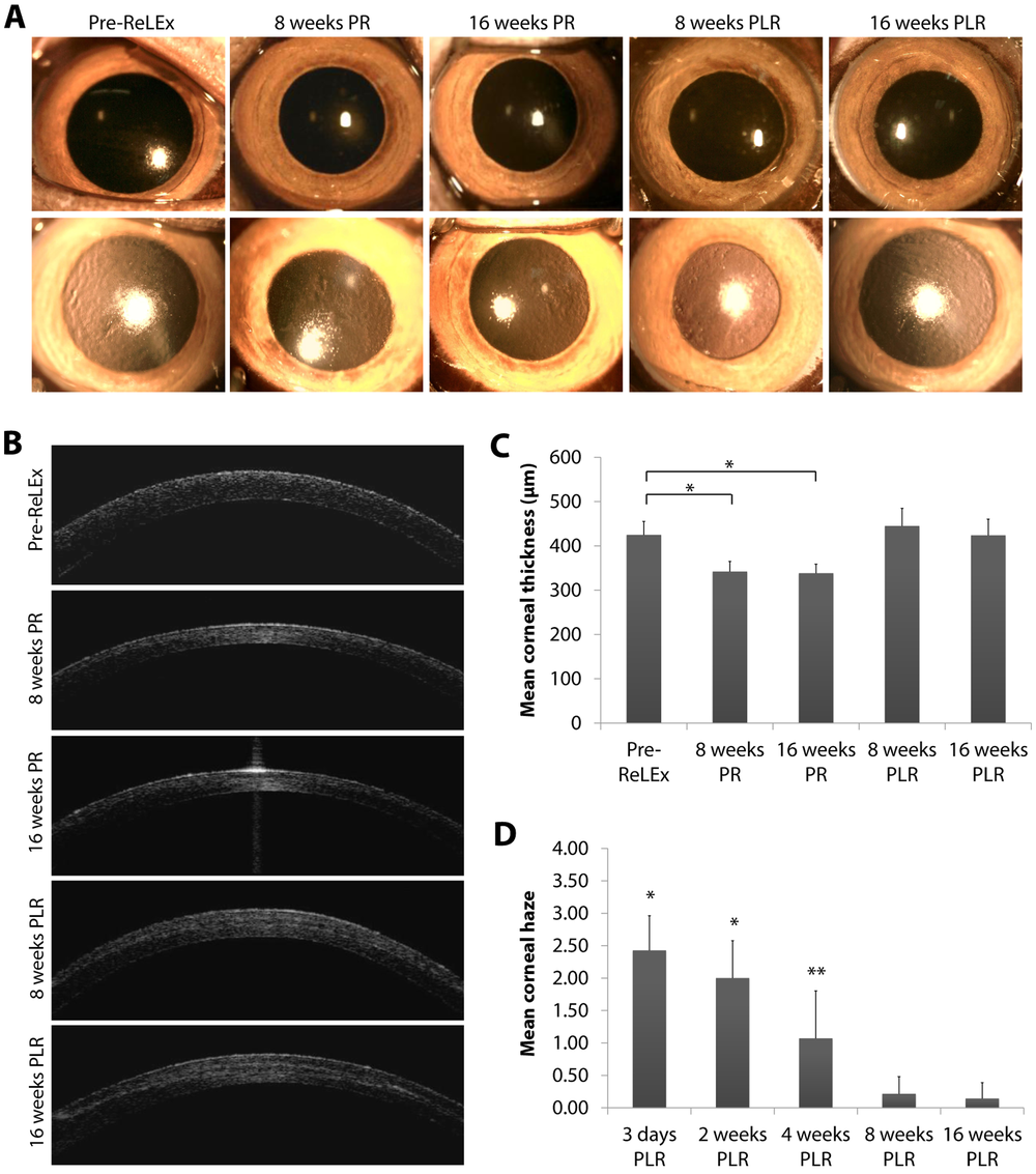Image sequence showing how corneal shape and volume can be restored following lenticule re-implantation (PLR). The cornea remains optically clear.