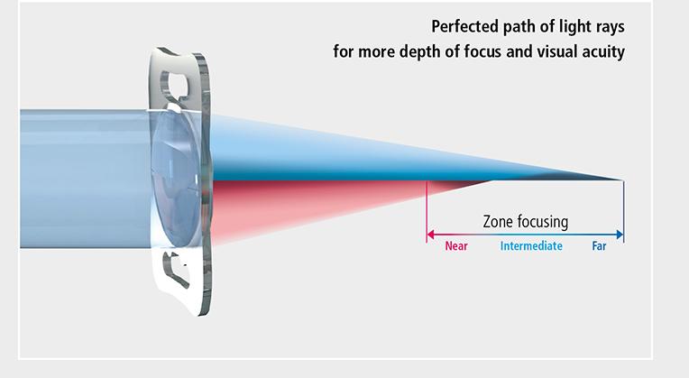 Multifocal lens surgery.jpg