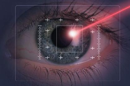 laser eye surgery and keratoconus