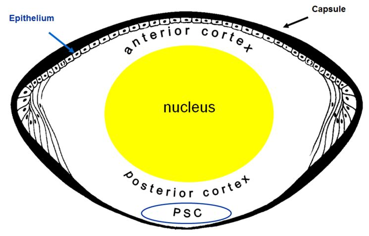 Posterior Capsular Opacification Can Result In Blurred Vision After