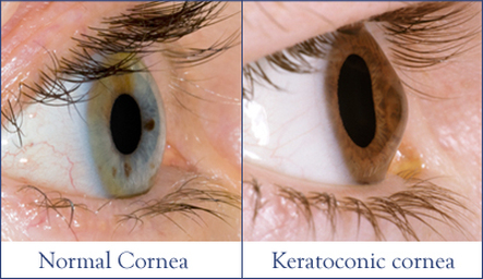 keratoconus treatment