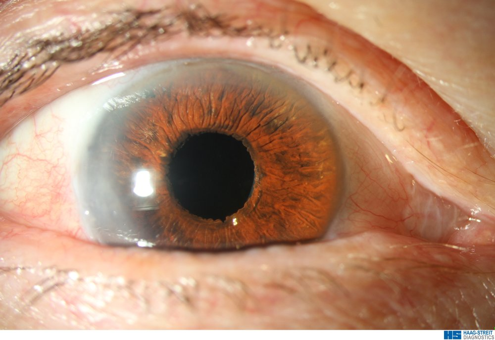 Appearance after repair with colour matched artificial iris