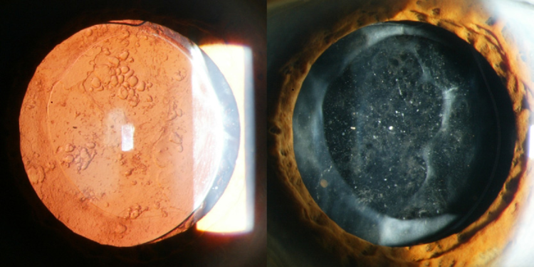 Secondary Cataract After Cataract Surgery Sightmd