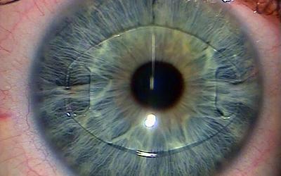 iris clip lens.jpg
