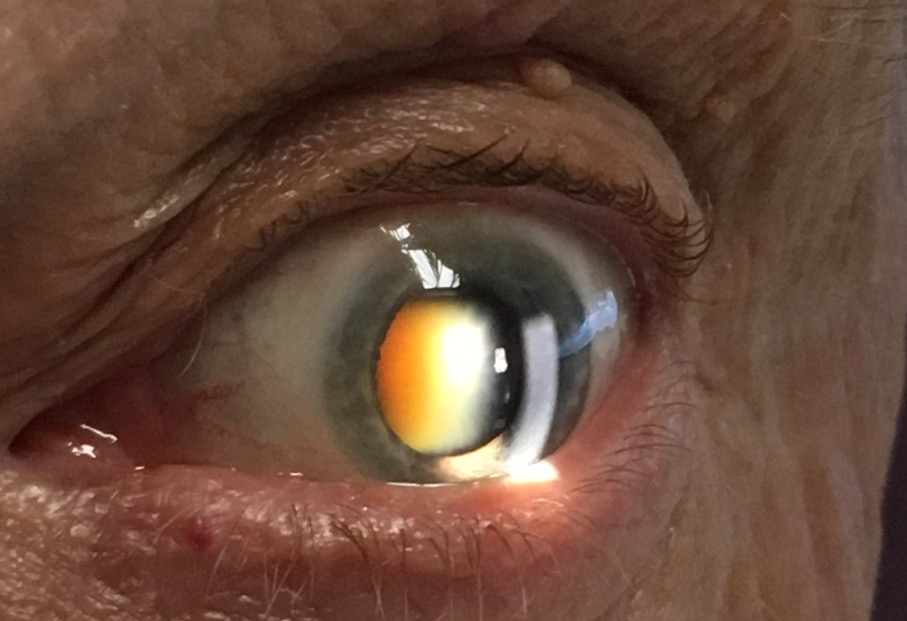 - A yellow-brown cataract can be seen in the centre of the pupil in this recent patient
