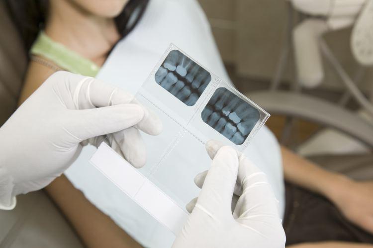 dental_x-rays.jpg