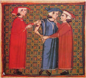 "Image:  ""Operating on the Upper Arm,"" which originally appeared in the textbook  Chirurgia  by Theodoric of Cervia (1205-1296) .   Reproduced in Miller's  Anesthesia.   Before anesthetic drugs were available, hypnosis might be used."