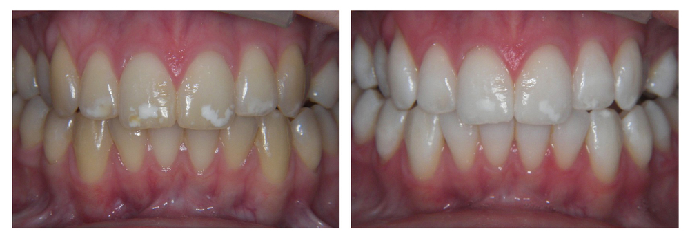 Enlighten Tooth Whitening