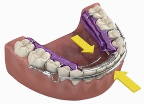 inman aligner picture