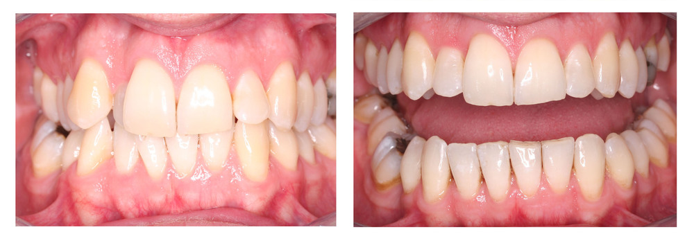 Invisalign invisible braces before and after