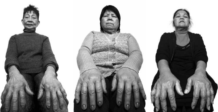 """Photographer Ryan Arbillo's """"Chicken Hands"""""""