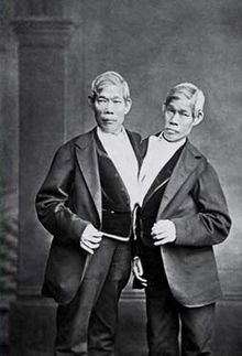 The original Siamese twins, Chang and Eng Bunker, 1811-1874. Born in what was called Siam, they settled and spent the rest of their days as citizens of Mt. Airy, North Carolina and are buried there.