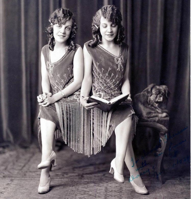 "Daisy and Violet Hilton,1908-1969, starred in at least one feature film and became the subject of two stage musicals, ""Side Show"" (1997), being the better known one. In that show, the actual twin-body fusion is never literally recreated on stage—the actresses portraying the twins merely stand side by side. Very eerily, the Hiltons lived out their final days in North Carolina, very near the farm of the original Siamese twins, Chang and Eng Bunker."
