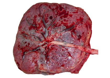 placenta3.png