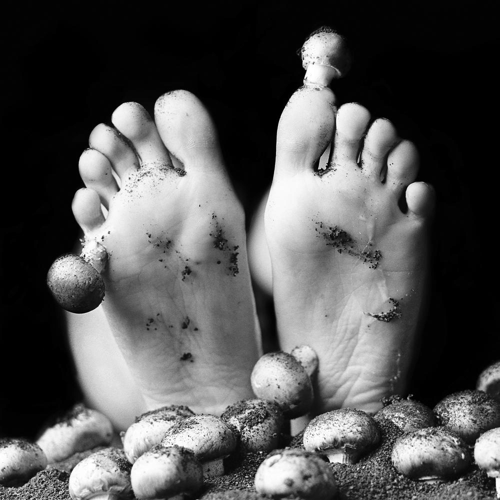 Feet Fungi.JPG