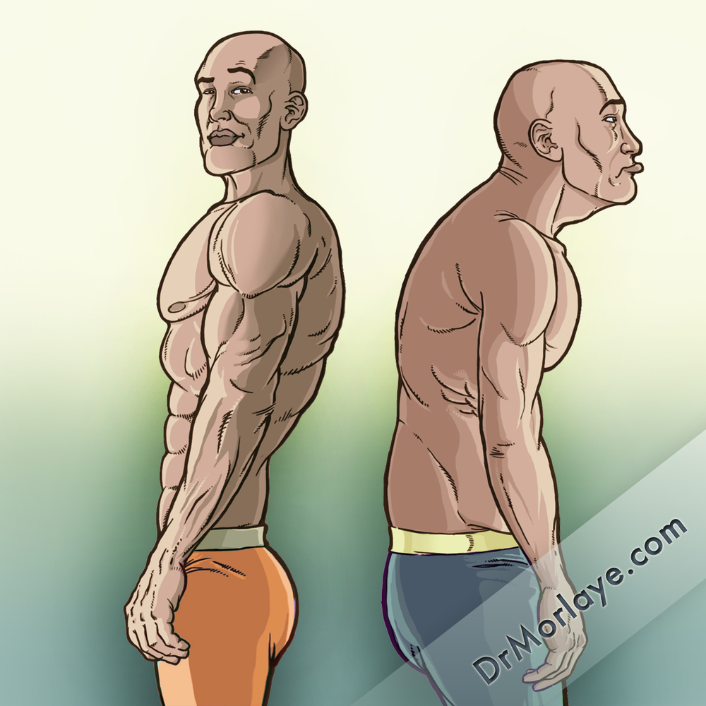 Good VS. Slouched Posture