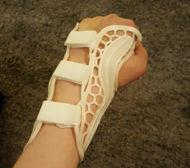 A view of the homemade 3D printed wrist brace showing the velcro fasteners
