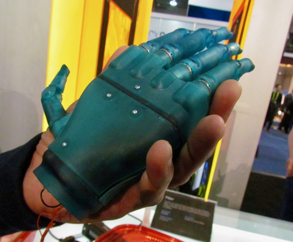 Handsmith's 3D printed prosthetic hand