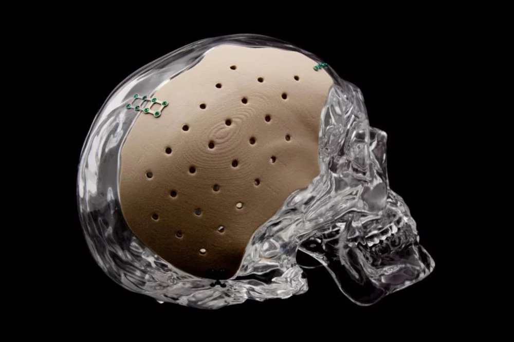 A patient-specific OsteoFab cranial implant 3D-printed by OPM. (Image courtesy of OPM.)