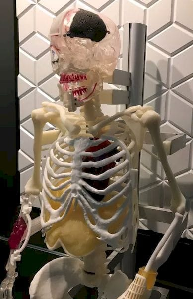 """Lucky,"" victim of bone cancer, skull and wrist fractures, needy of jaw realignment, greets visitors at 3D Systems' Denver area facility, an example of the company's expertise in creating customized body parts."