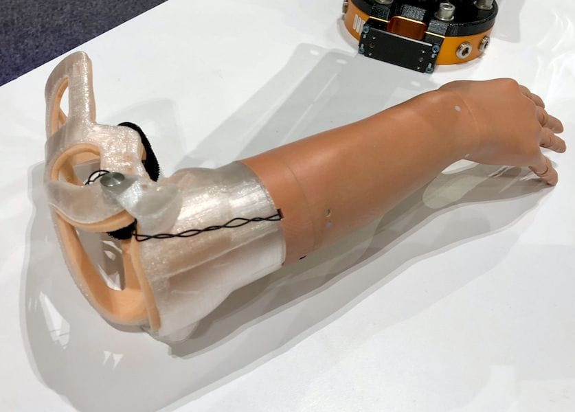 Unlimited Tomorrow's highly sophisticated 3D printed prosthetic arm