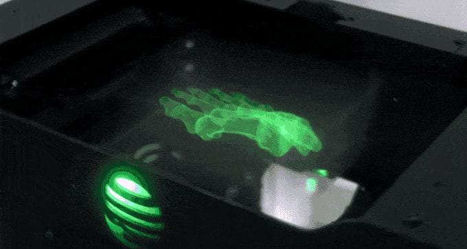 X-ray view of a human foot visualized with Lumi Industries' new VVD