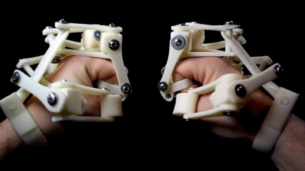 3D printed exoskeletons on each hand!