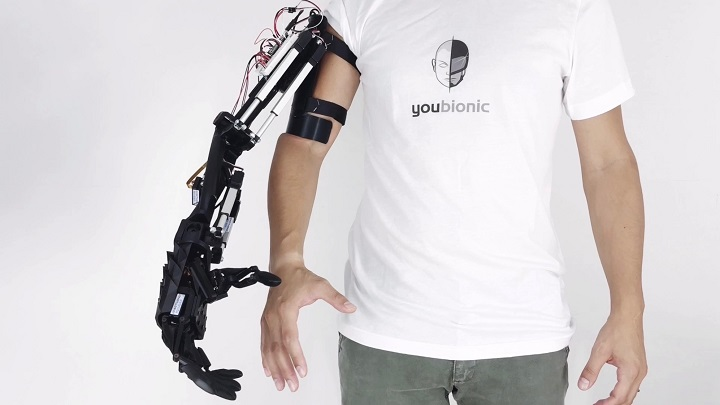 [Image provided by Youbionic]