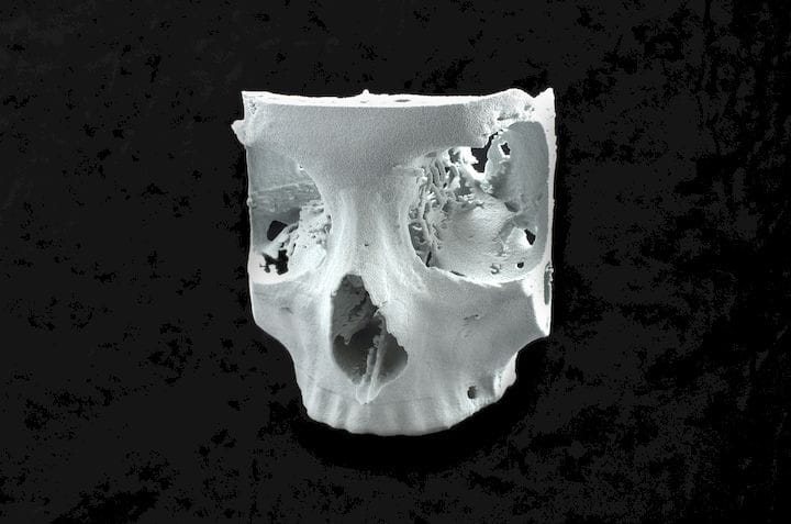 A human skull 3D printed in flexible white material [Source: Sinterit]