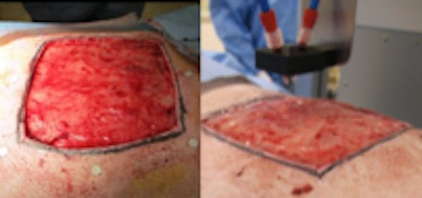 Example of a wound closed by the 3D bioprinting system [Source:  Nature ]