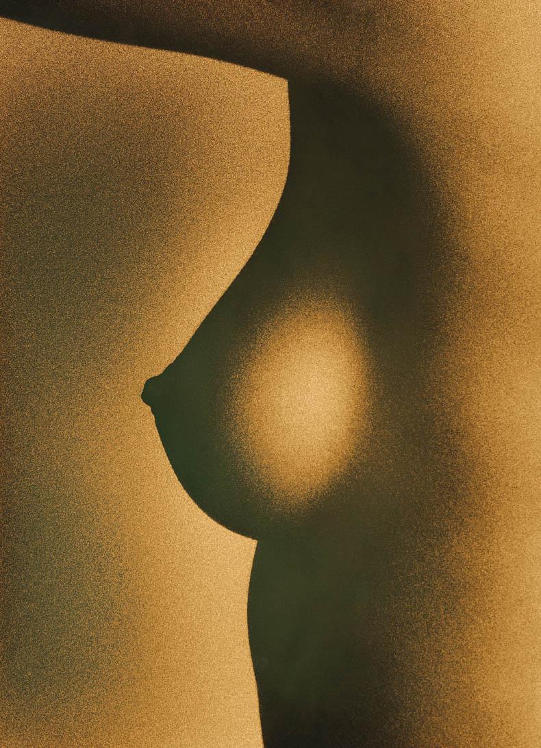 Lipofilling du sein, possible pour une augmentation de volume modérée