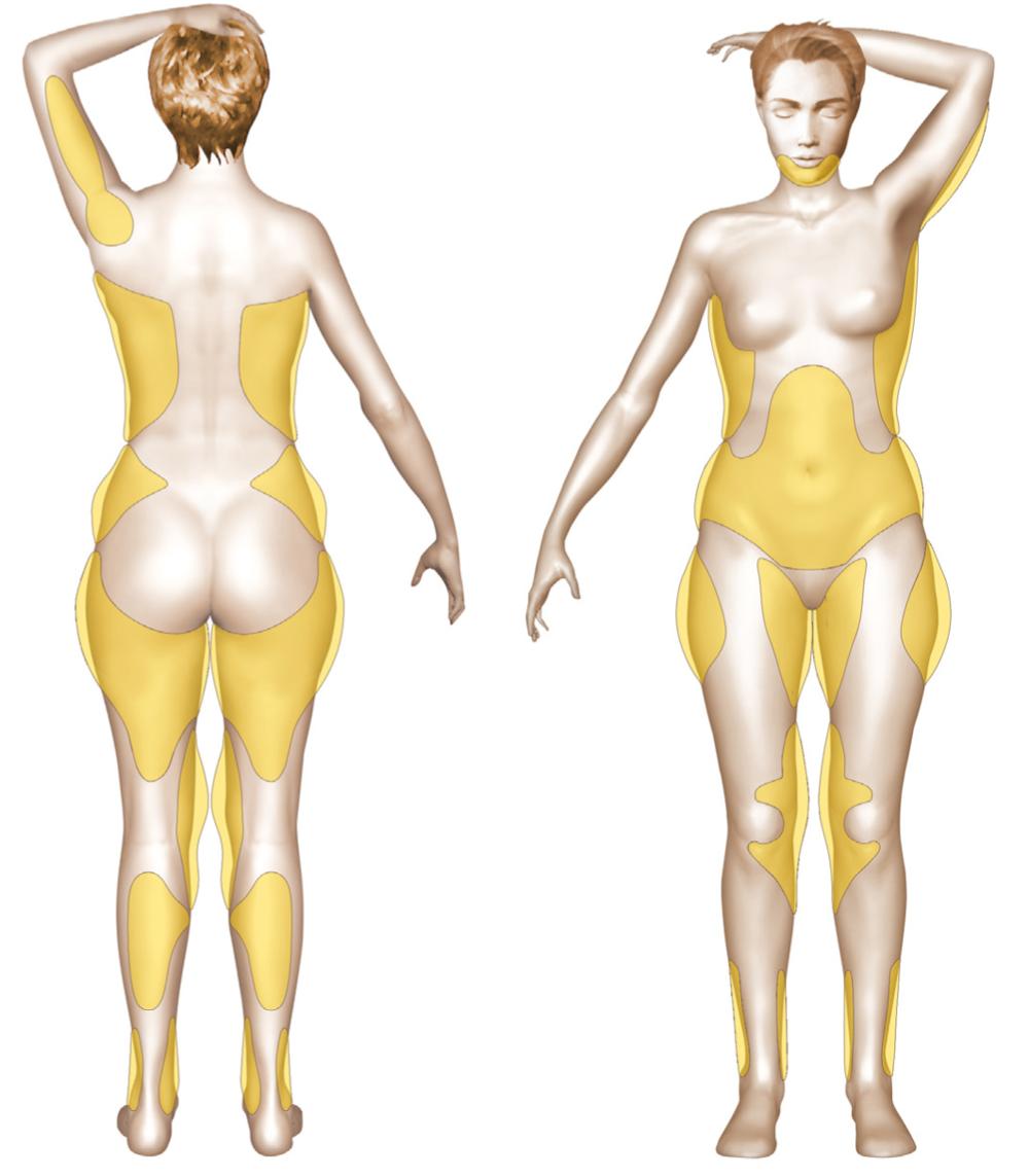 zones-liposuccion.png
