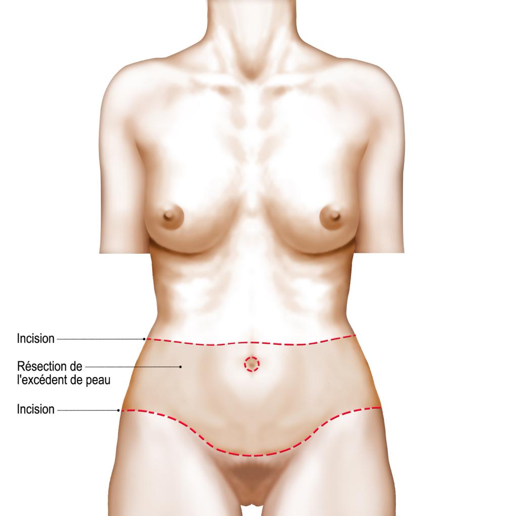 miniplastie-abdominale.png